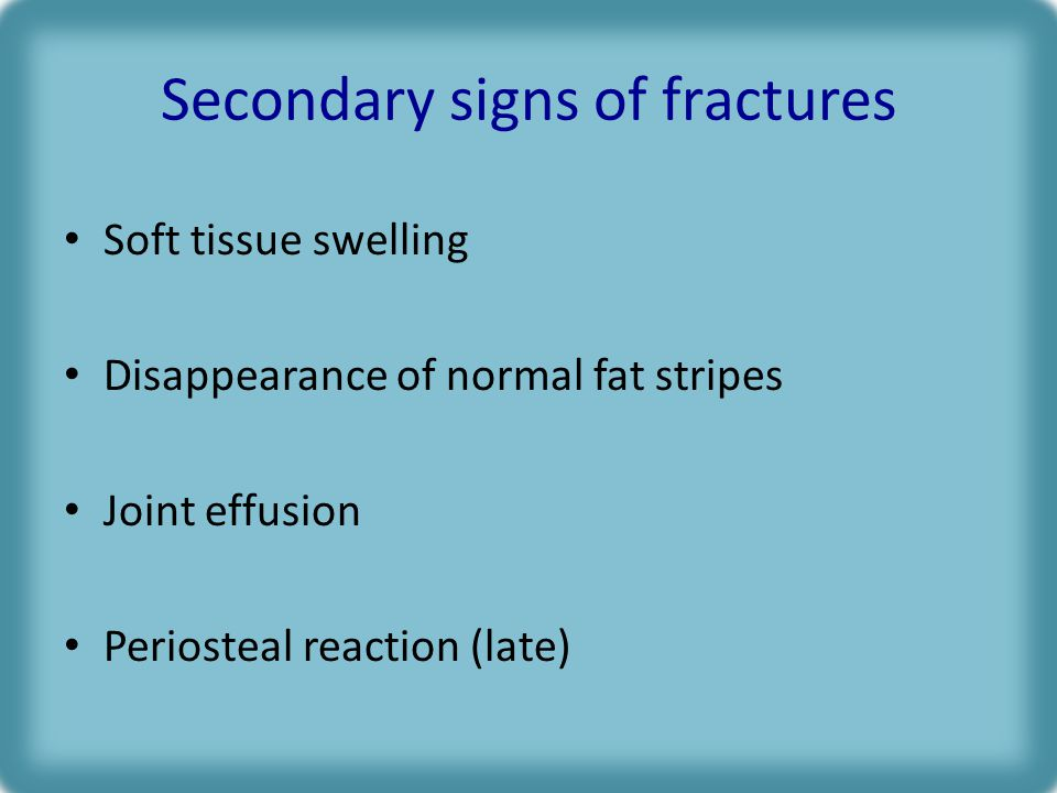 Secondary signs of fractures