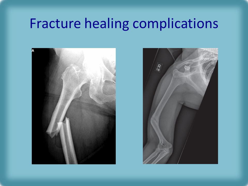 Fracture healing complications