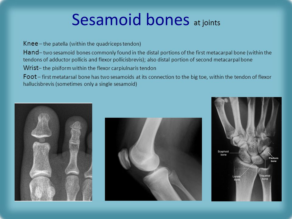 Sesamoid bones at joints