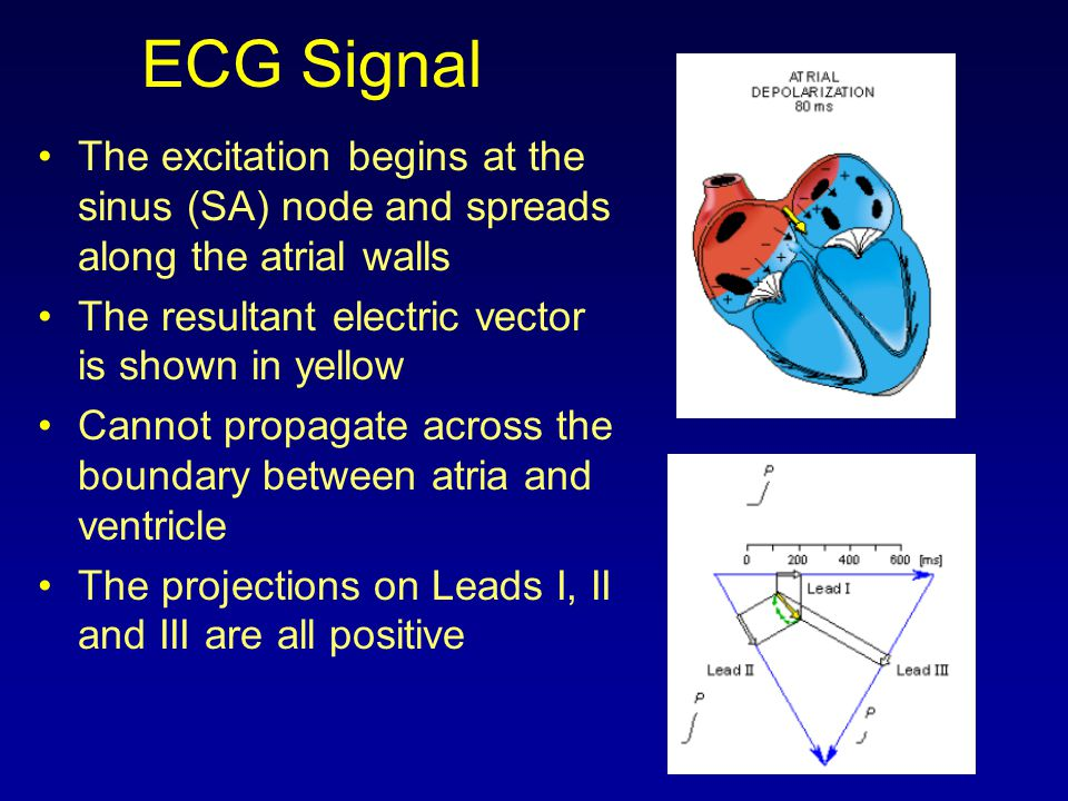 ECG Signal The excitation begins at the sinus (SA) node and spreads along the atrial walls. The resultant electric vector is shown in yellow.