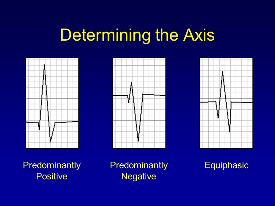 Determining the Axis Predominantly Positive Predominantly Negative