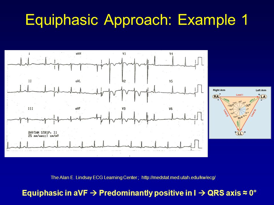 Equiphasic Approach: Example 1