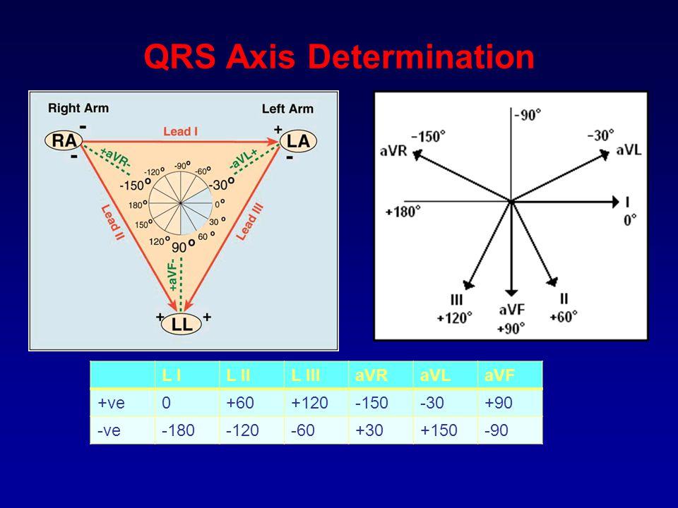 QRS Axis Determination