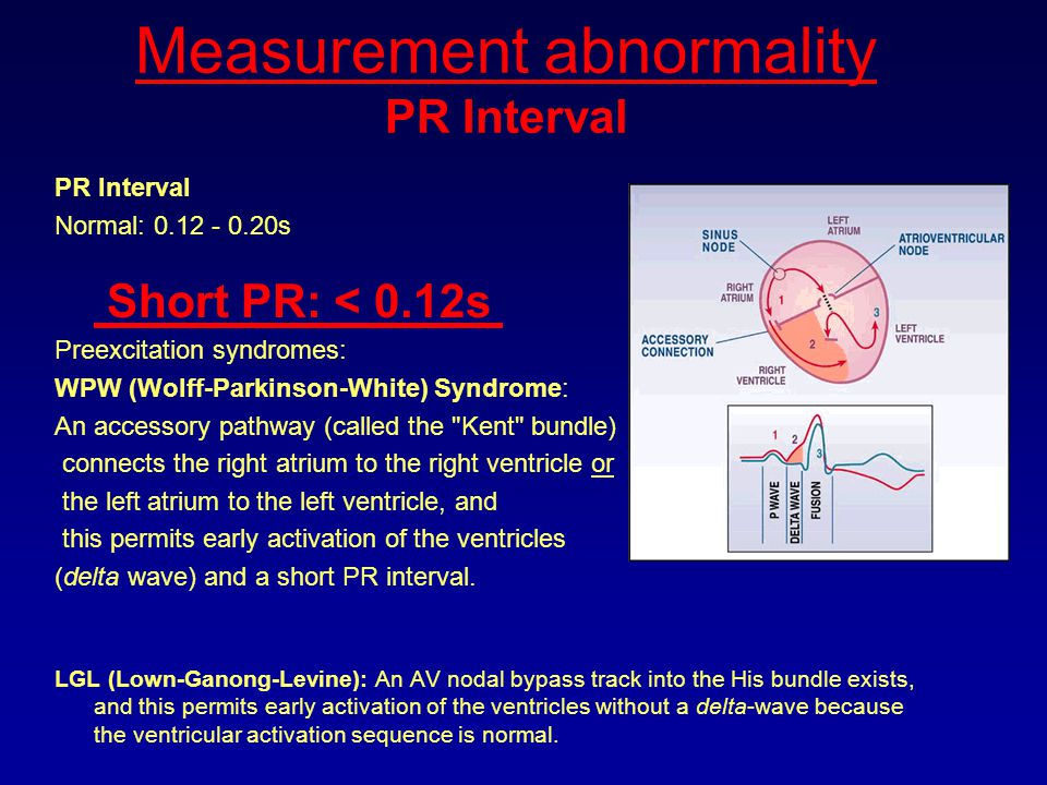 Measurement abnormality PR Interval