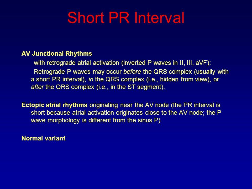 Short PR Interval