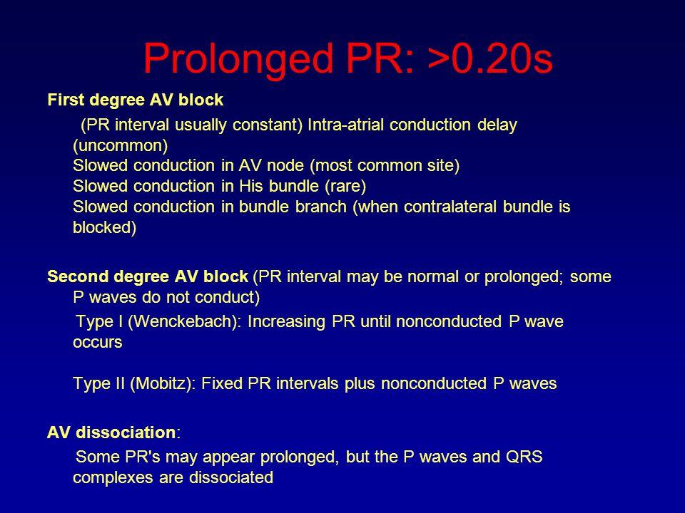 Prolonged PR: >0.20s