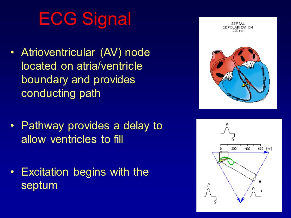 ECG Signal Atrioventricular (AV) node located on atria/ventricle boundary and provides conducting path.