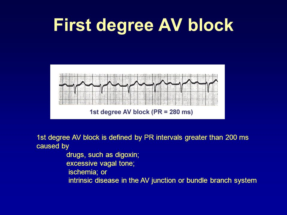 First degree AV block 1st degree AV block is defined by PR intervals greater than 200 ms. caused by.