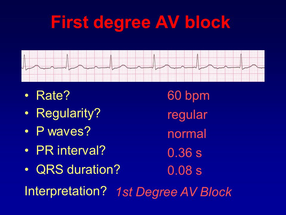 First degree AV block Rate 60 bpm Regularity regular P waves normal