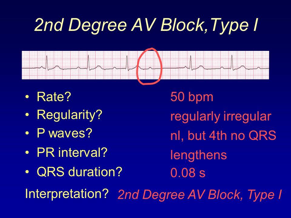 2nd Degree AV Block,Type I