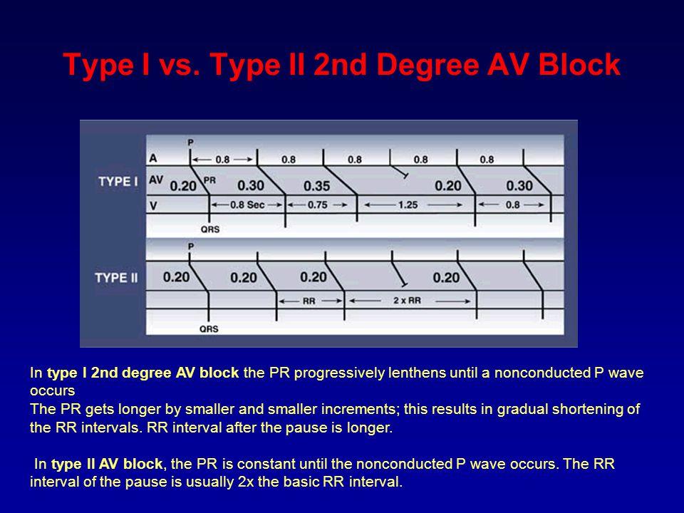 Type I vs. Type II 2nd Degree AV Block
