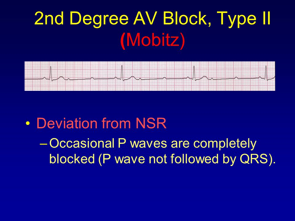 2nd Degree AV Block, Type II (Mobitz)