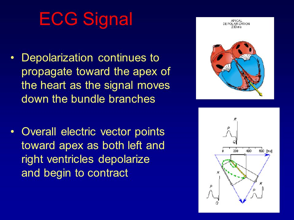 ECG Signal Depolarization continues to propagate toward the apex of the heart as the signal moves down the bundle branches.