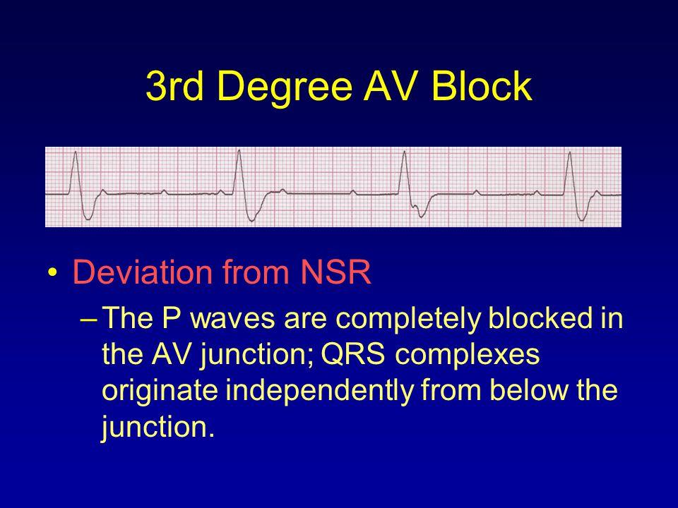 3rd Degree AV Block Deviation from NSR