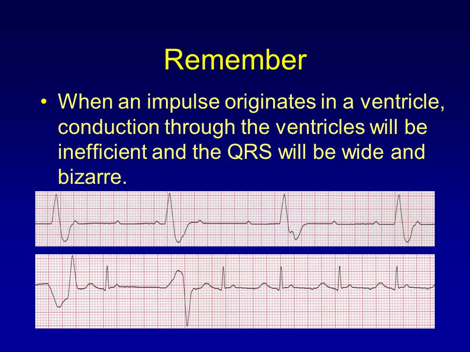 Remember When an impulse originates in a ventricle, conduction through the ventricles will be inefficient and the QRS will be wide and bizarre.
