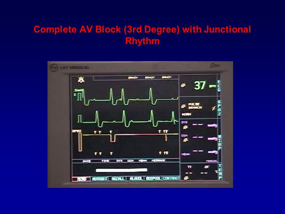 Complete AV Block (3rd Degree) with Junctional Rhythm