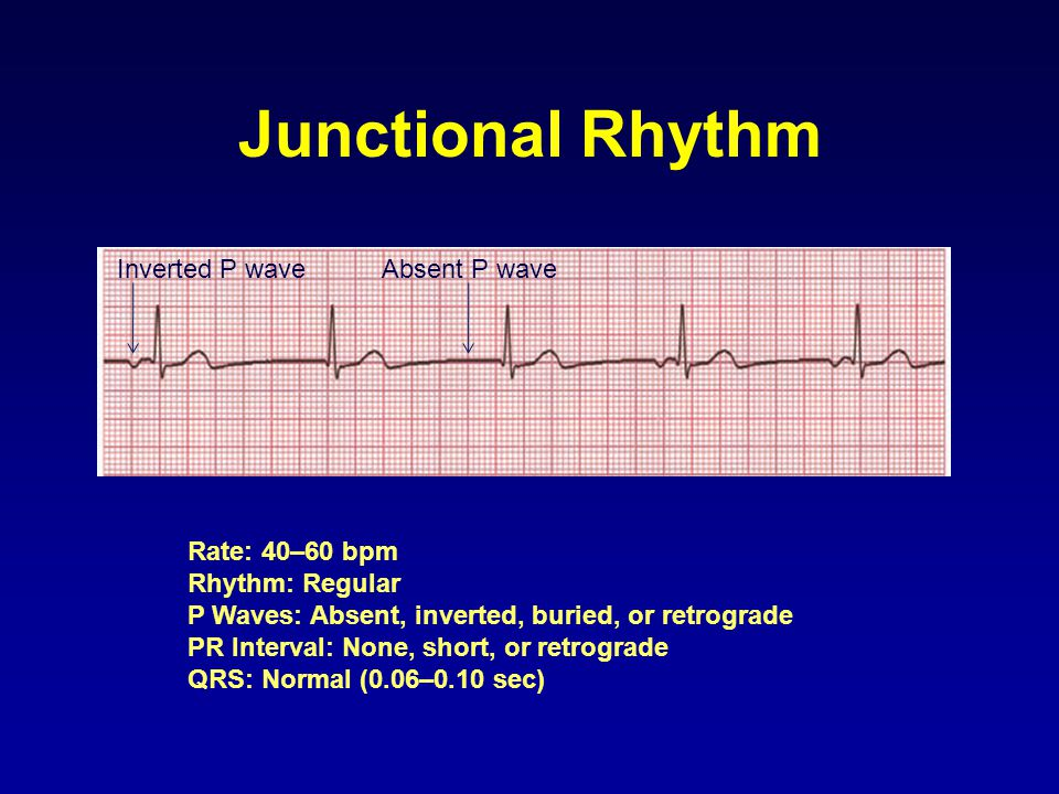 Junctional Rhythm Inverted P wave Absent P wave Rate: 40–60 bpm