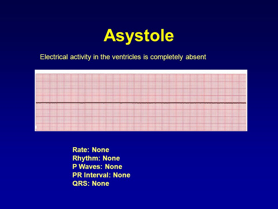 Asystole Electrical activity in the ventricles is completely absent