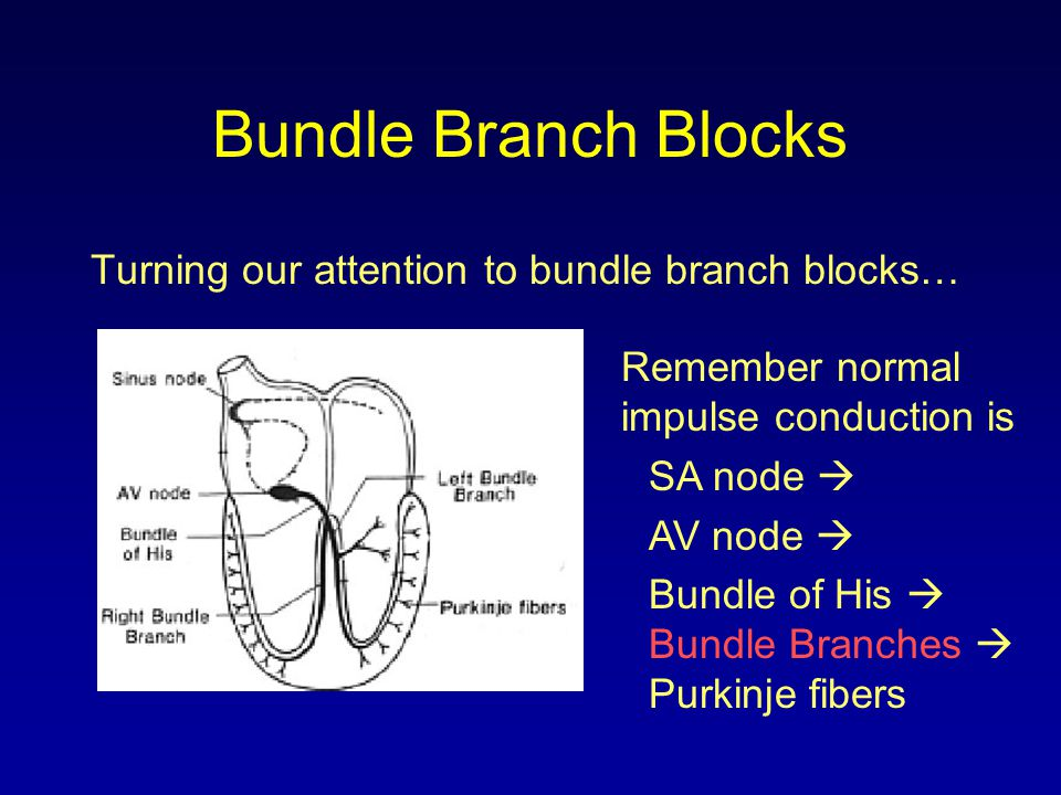 Bundle Branch Blocks Turning our attention to bundle branch blocks…