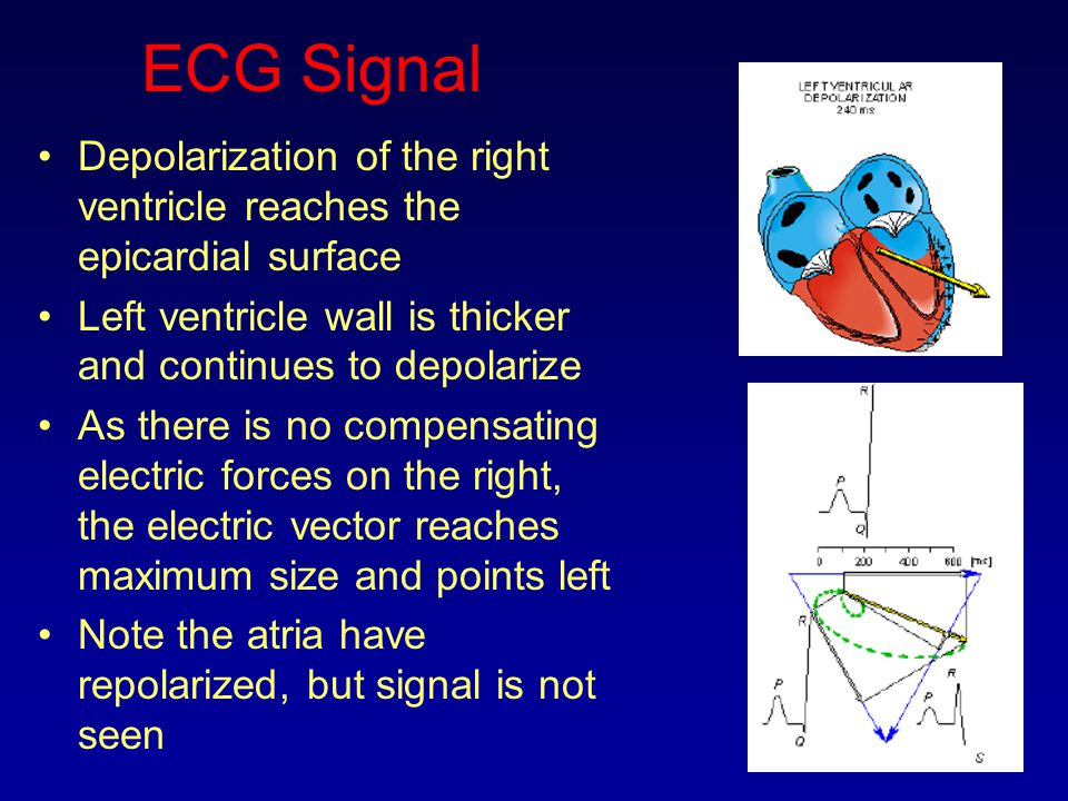 ECG Signal Depolarization of the right ventricle reaches the epicardial surface. Left ventricle wall is thicker and continues to depolarize.