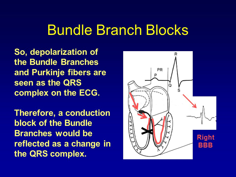 Bundle Branch Blocks So, depolarization of the Bundle Branches and Purkinje fibers are seen as the QRS complex on the ECG.