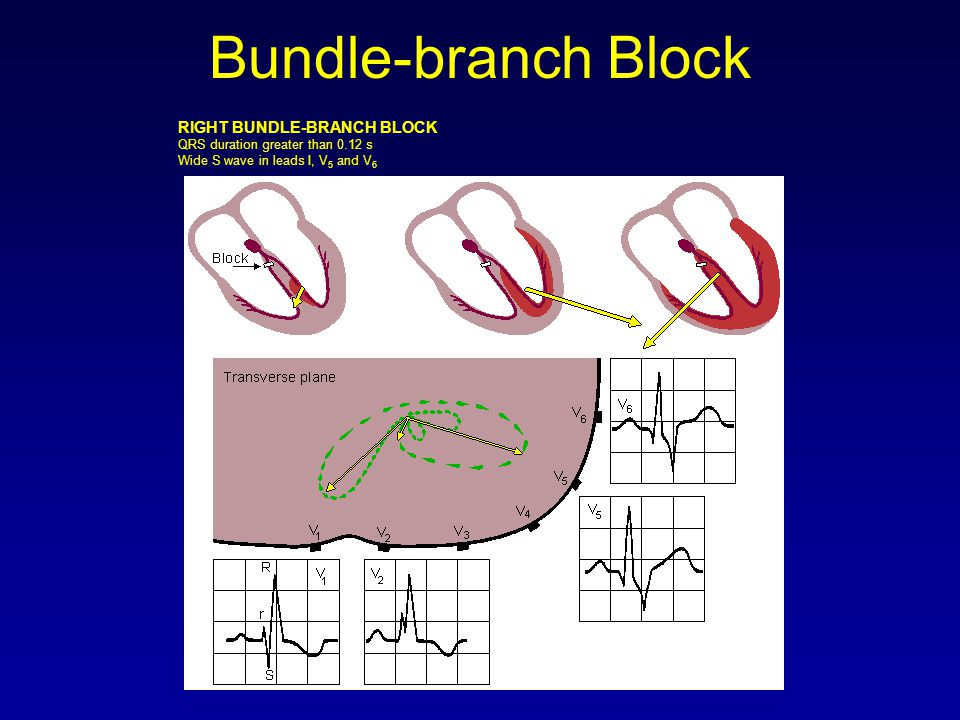 Bundle-branch Block RIGHT BUNDLE-BRANCH BLOCK QRS duration greater than 0.12 s Wide S wave in leads I, V5 and V6.