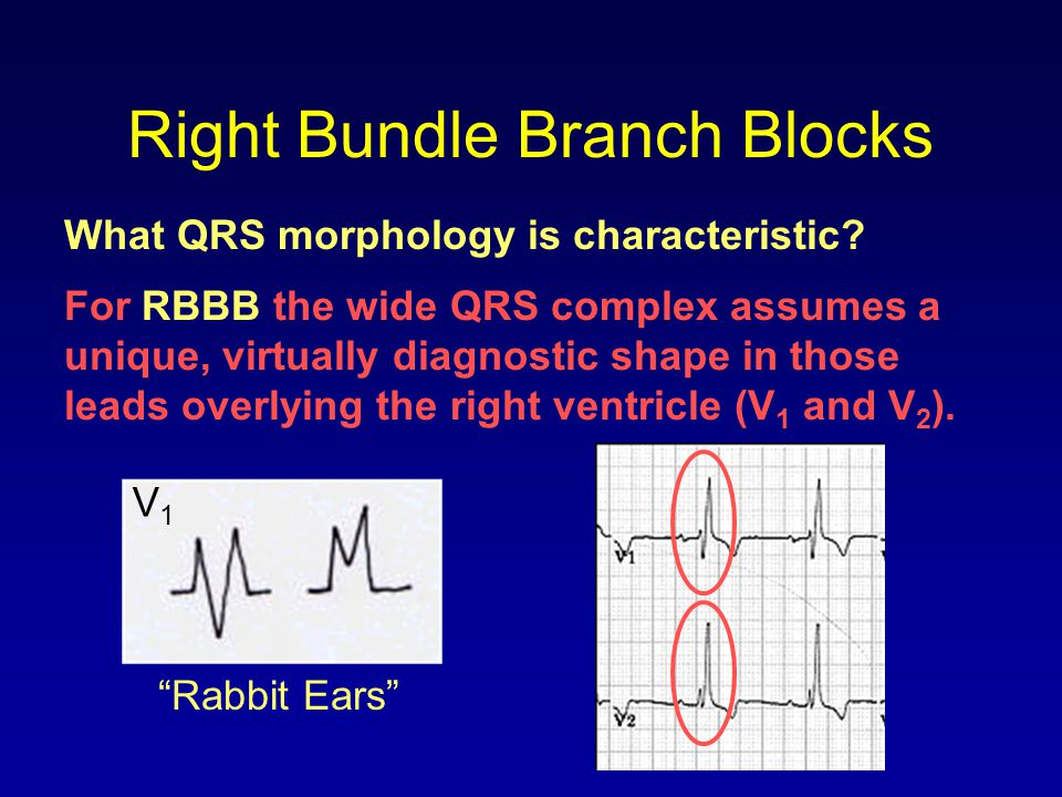 Right Bundle Branch Blocks
