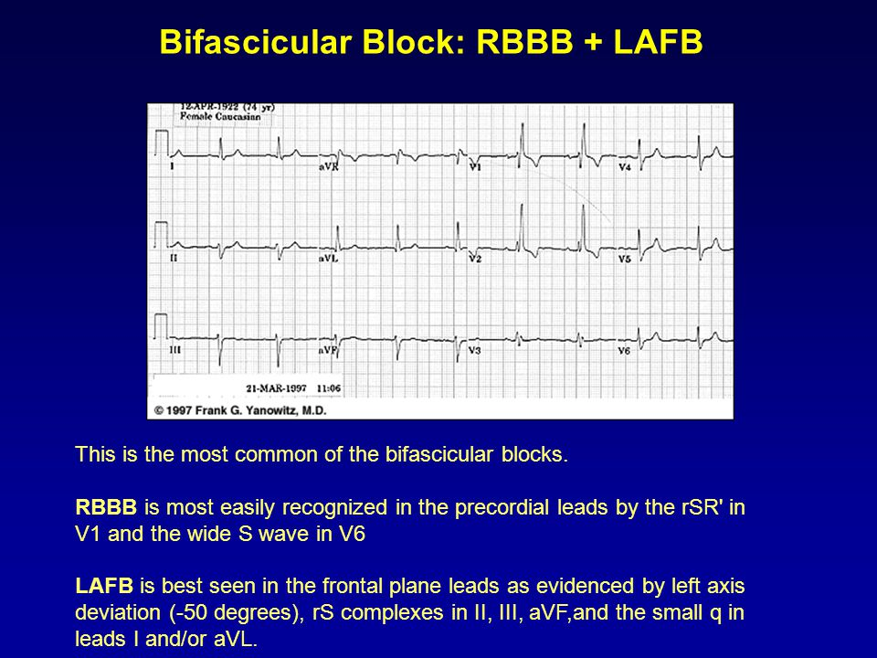 Bifascicular Block: RBBB + LAFB