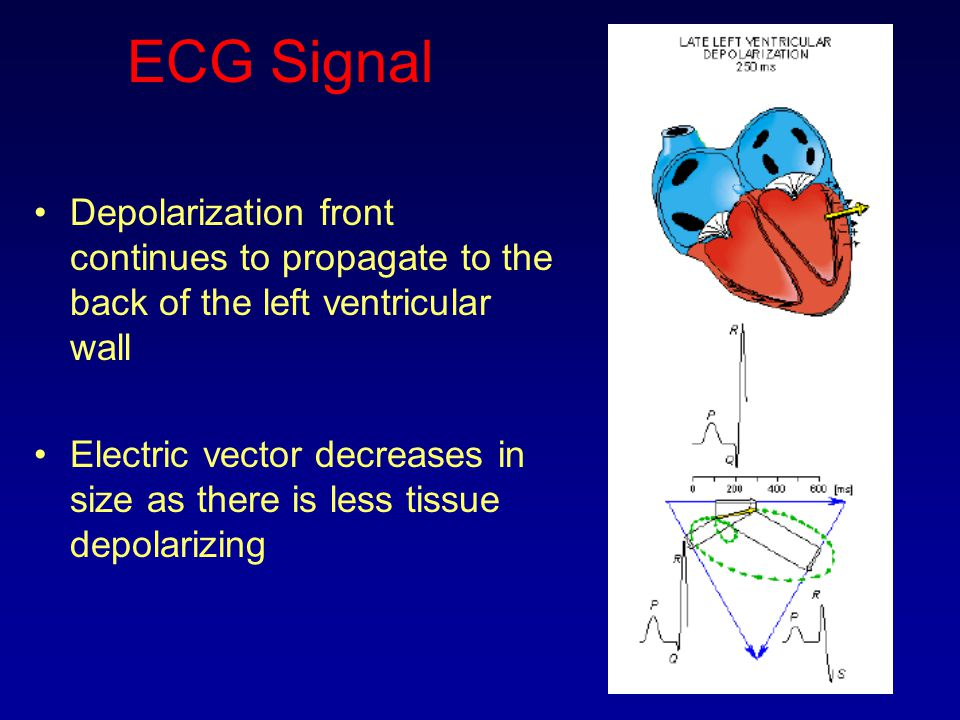 ECG Signal Depolarization front continues to propagate to the back of the left ventricular wall.