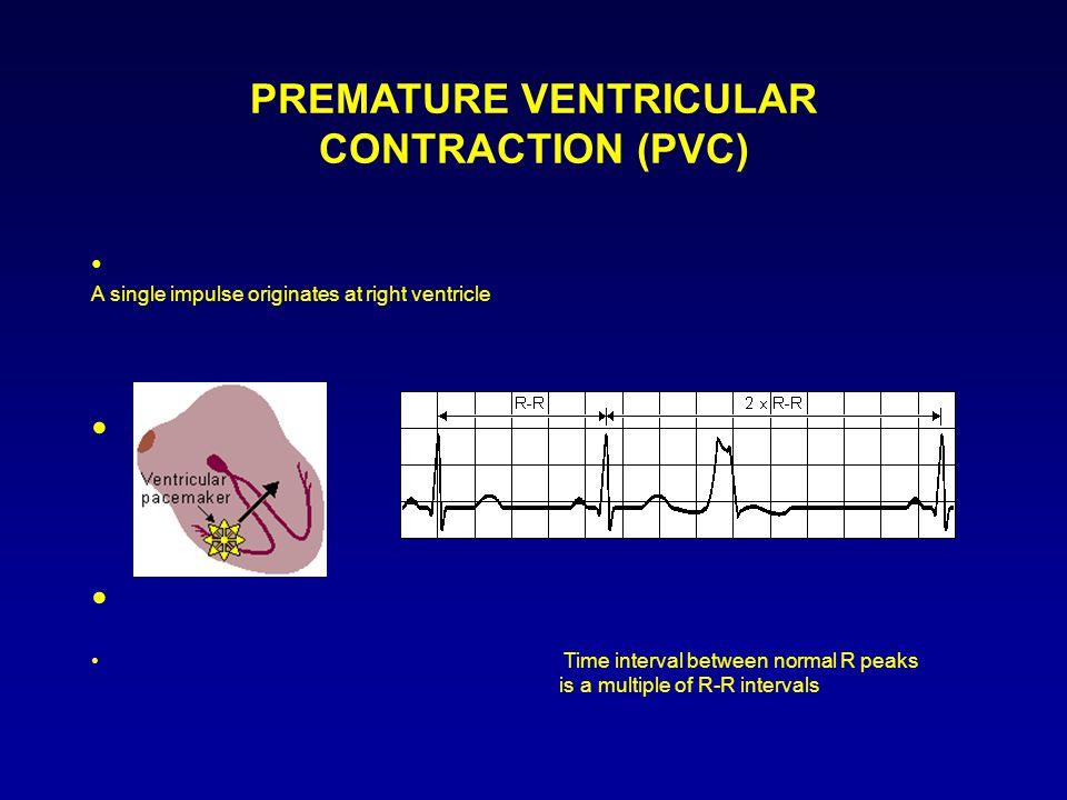 PREMATURE VENTRICULAR CONTRACTION (PVC)