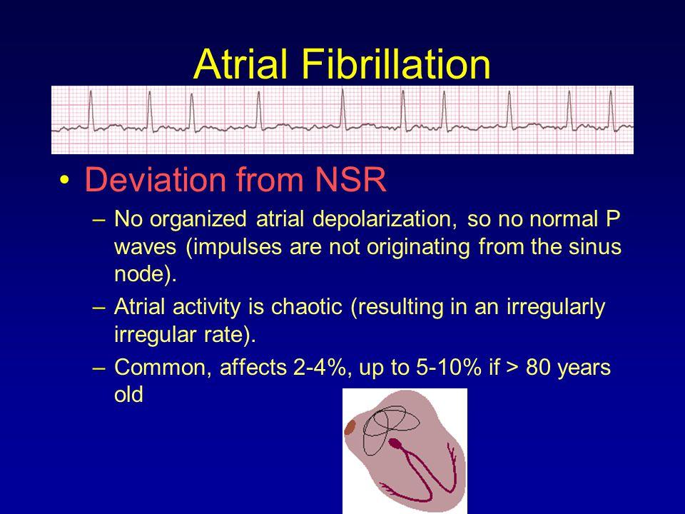 Atrial Fibrillation Deviation from NSR