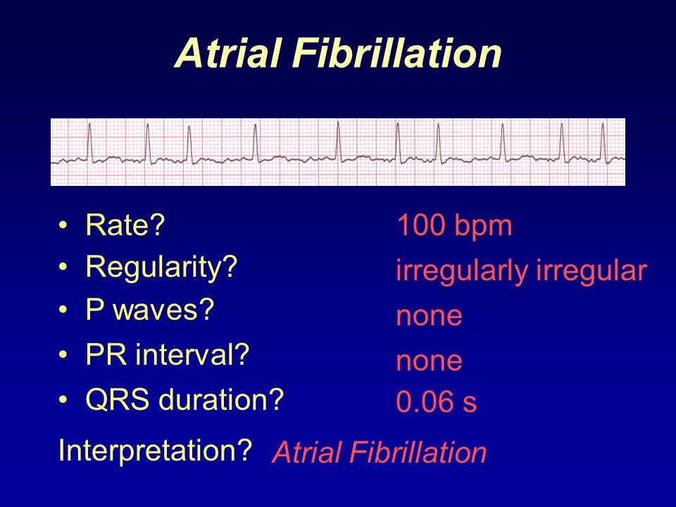 Atrial Fibrillation Rate 100 bpm Regularity irregularly irregular