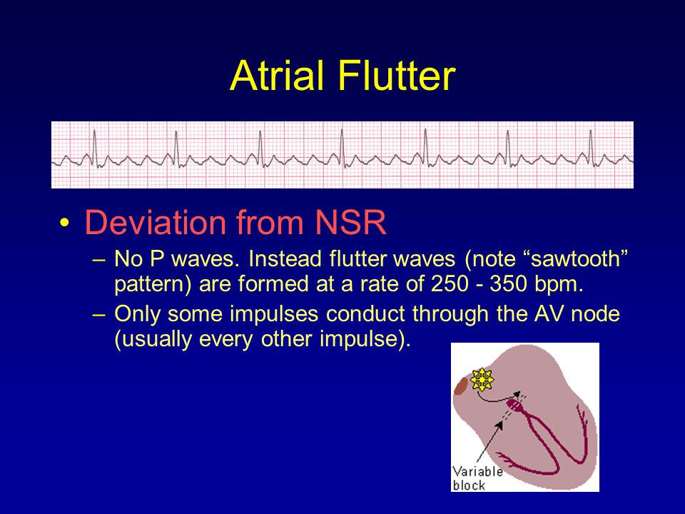 Atrial Flutter Deviation from NSR