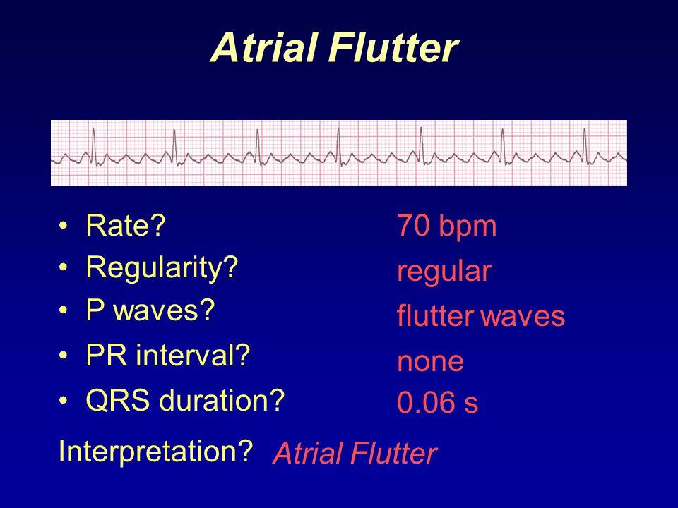 Atrial Flutter Rate 70 bpm Regularity regular P waves flutter waves