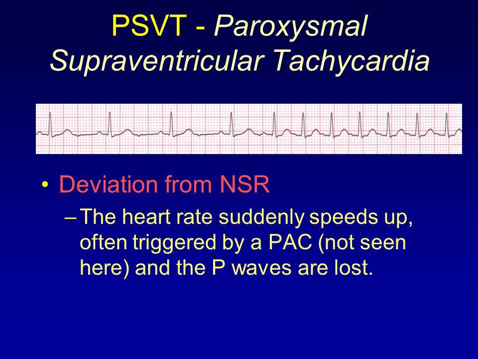 PSVT - Paroxysmal Supraventricular Tachycardia