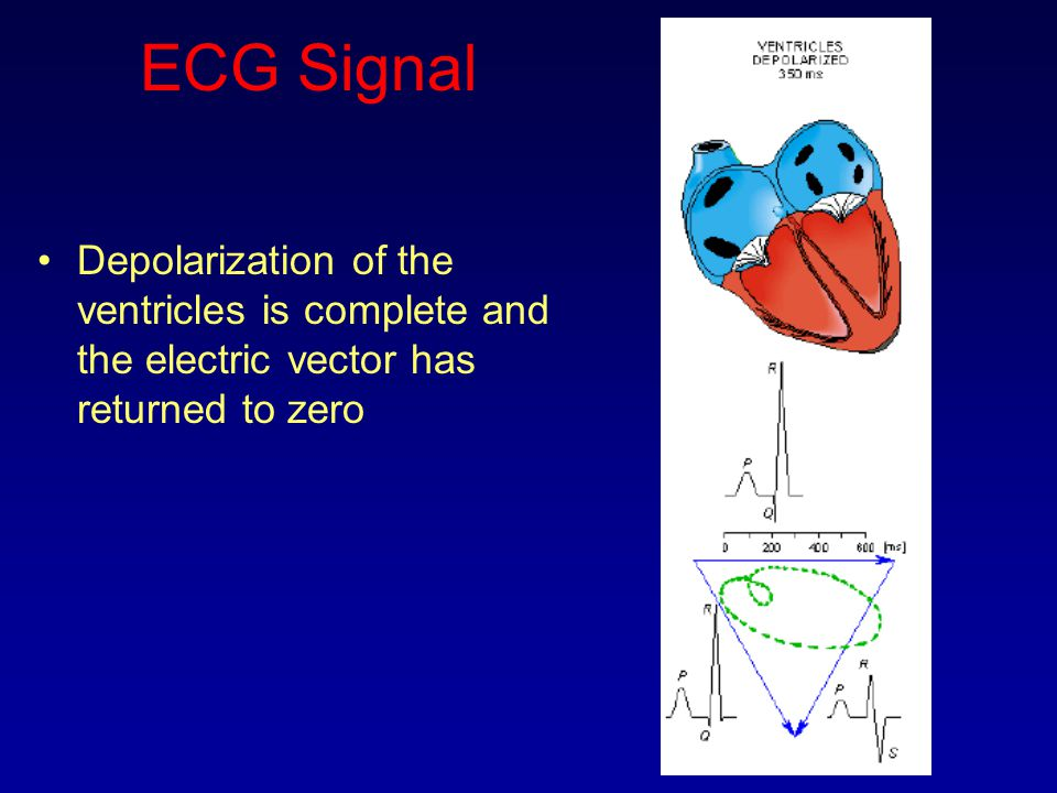 ECG Signal Depolarization of the ventricles is complete and the electric vector has returned to zero.