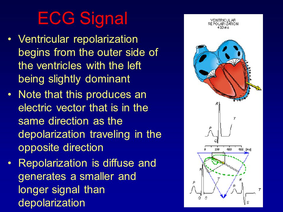 ECG Signal Ventricular repolarization begins from the outer side of the ventricles with the left being slightly dominant.