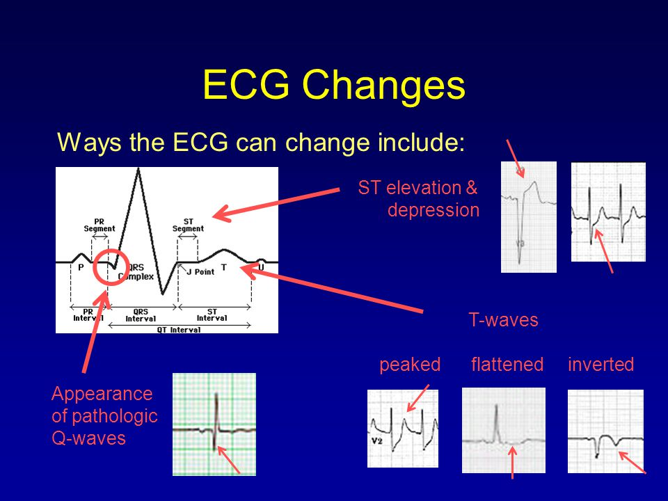 ECG Changes Ways the ECG can change include: ST elevation & depression