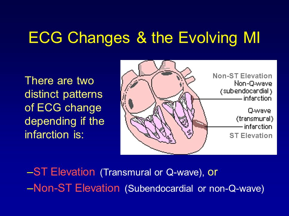 ECG Changes & the Evolving MI