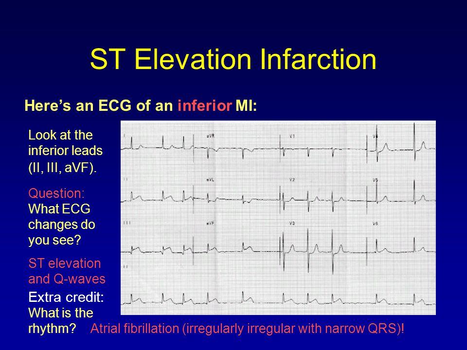 ST Elevation Infarction