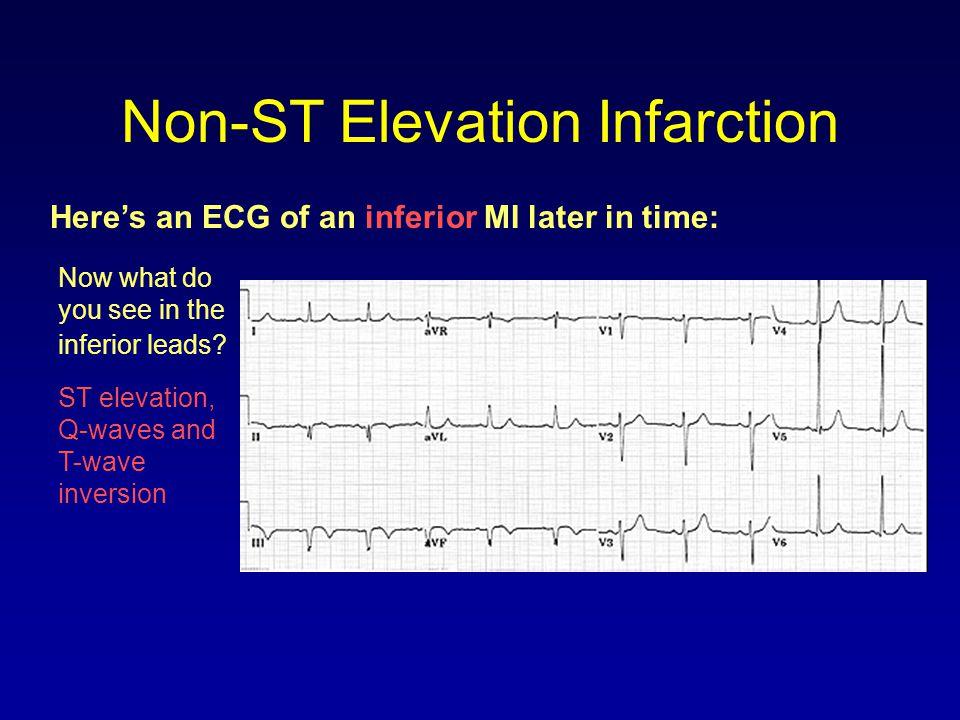 Non-ST Elevation Infarction