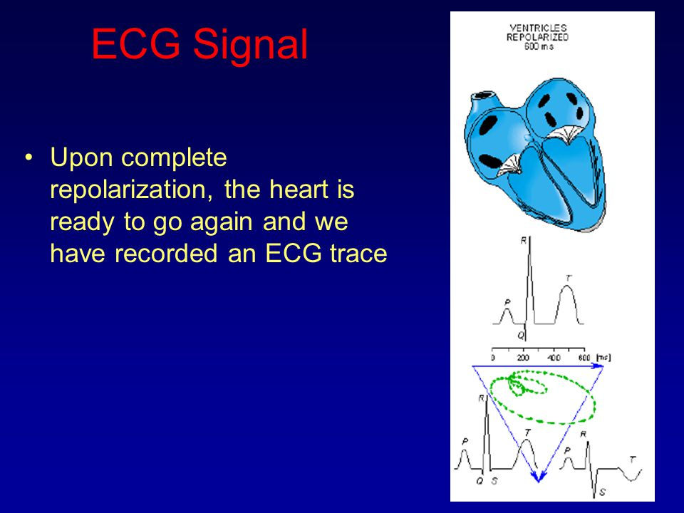 ECG Signal Upon complete repolarization, the heart is ready to go again and we have recorded an ECG trace.