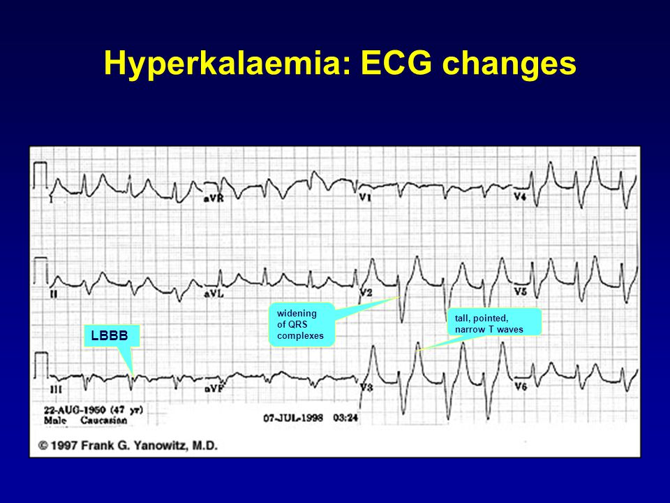 Hyperkalaemia: ECG changes