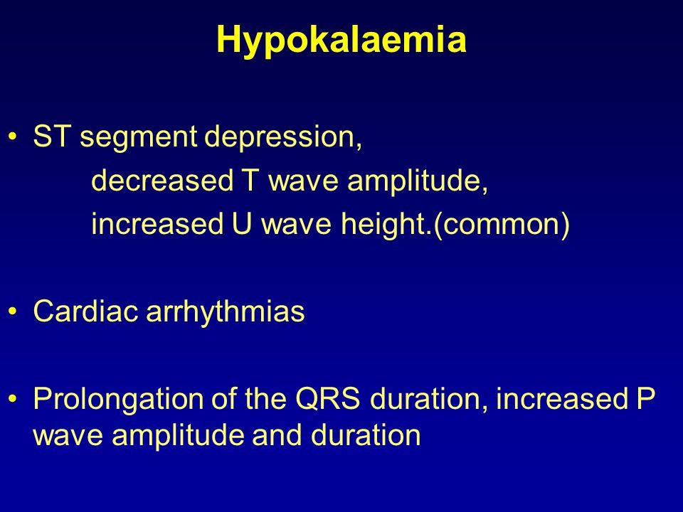 Hypokalaemia ST segment depression, decreased T wave amplitude,