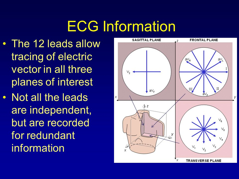 ECG Information The 12 leads allow tracing of electric vector in all three planes of interest.
