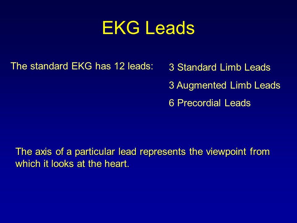 EKG Leads The standard EKG has 12 leads: 3 Standard Limb Leads