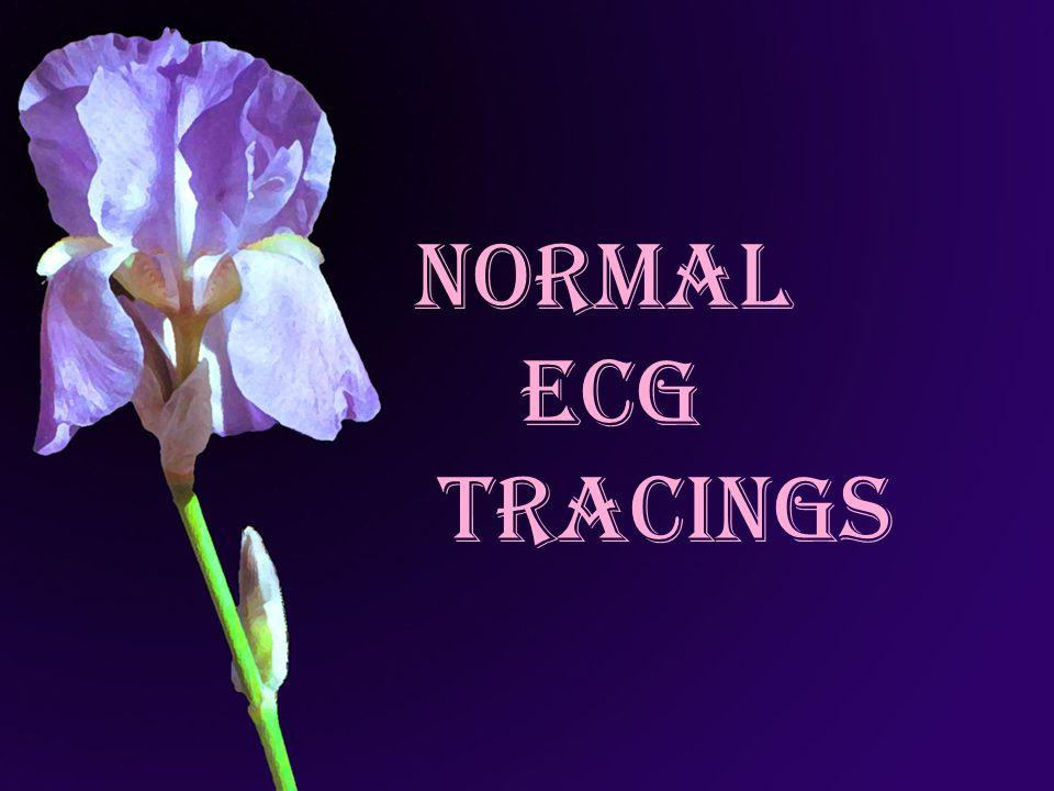 NORMAL ECG TRACINGS