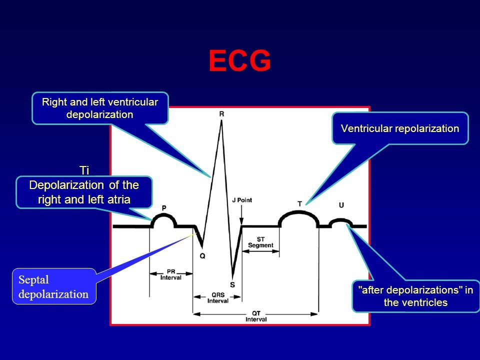 ECG Ti Depolarization of the right and left atria
