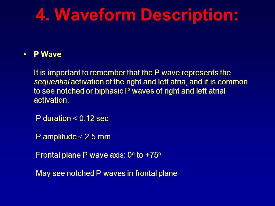4. Waveform Description: