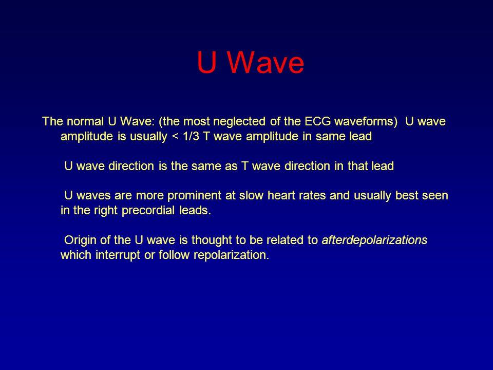 U Wave